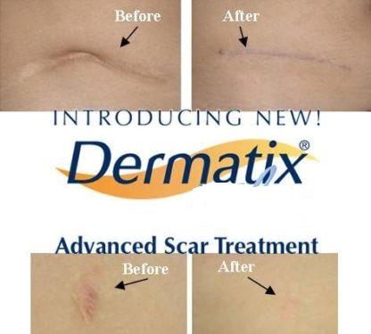 Thuốc trị sẹo Dermatix có hiệu quả không?
