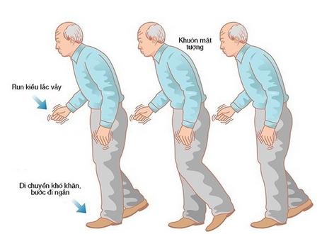 biểu hiện bệnh parkinson